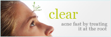 Clear acne fast by treating it at the root