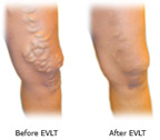 EVLT before and after
