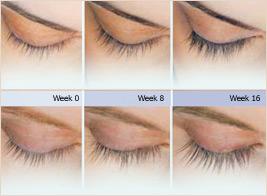 Latisse eyelashes before & after