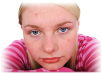 Adolescent girl with acne