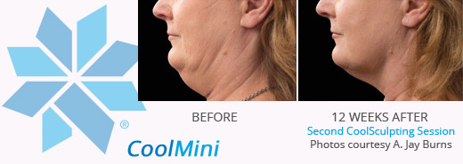 Coolsculpting Coolmini before and after photos